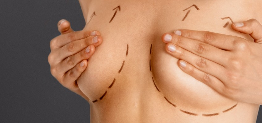 cirugia de mamoplastia