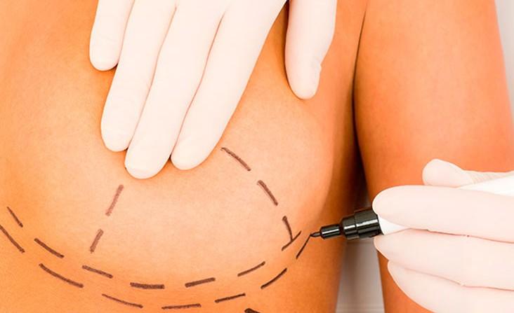 mamoplastia-cirugia-plastica-dominicana